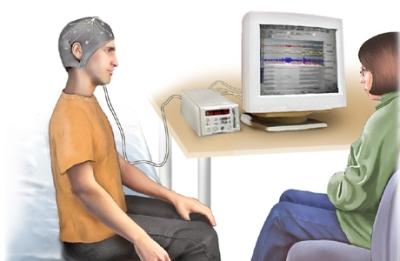 Electroencefalograma con privación de sueño