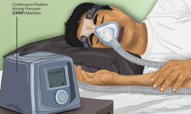 Tratamiento con CPAP y sus problemas.