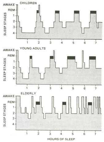 Evolución del Sueño en la Gente Mayor - Dr. Ferré - Especialista en trastornos del sueño