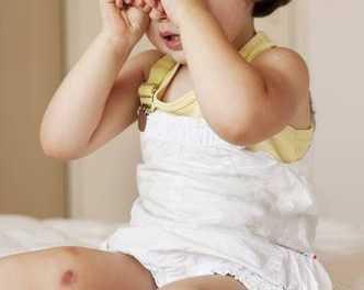 Insomnio Infantil por Malos Hábitos (6 meses-3 años)