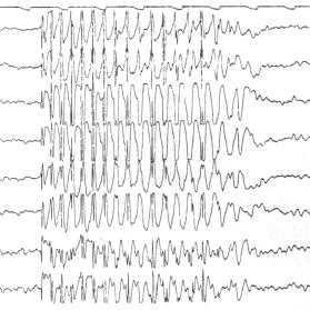 EEG patológico