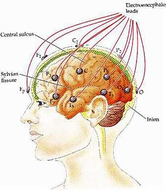 colocación de electrodos en el cerebro para el registro de la actividad cerebral