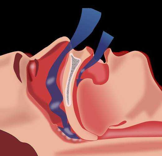 Tratamiento natural para la apnea obstructiva del sueno