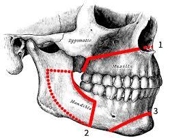 Nueva cirugía maxilofacial para el tratamiento de la apnea del sueño.