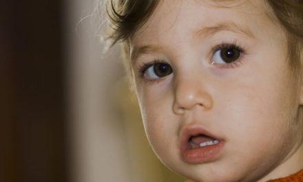 Consecuencia en el crecimiento facial de los niños debidos a la apnea del sueño