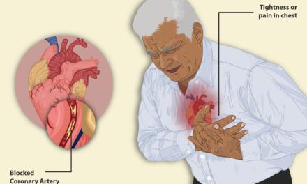 La apnea del sueño se asocia a mayor prevalencia de muerte súbita.